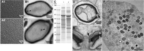 "Fig. 1 Images of Pandoravirus particles and their proteomic profiles. Light microscopy (A) and electron microscopy images (B) of P. salinus (1) and P. dulcis (2) purified particles. (C) Electrophoresis profiles of P. salinus (lane 1) and P. dulcis (lane 2) extracted proteins. (D) Internalized P. salinus particle in the host vacuole. Once fused with the vacuole membrane (arrow), the virion internal membrane creates a continuum with the host cytoplasm. The particles are wrapped into a ~70-nm-thick tegument-like envelope consisting of three layers. (E) Magnified image of the opened ostiole-like apex: from the inside out, a layer of light density of unknown composition (~20 nm, marked ""b""), an intermediate dark layer comprising a dense mesh of fibrils (~25 nm, marked ""a""), and an external layer of medium density (~25 nm, marked ""c""). This tegument-like envelope is interrupted by the ostiole-like pore measuring ~70 nm in diameter. As shown in (B1) and (B2), the lipid membrane internal to the particle encloses a diffuse interior devoid of visible substructure, except for a spherical area of electron-dense material (50 nm in diameter, arrowhead) seen episodically but in a reproducible fashion. (F) Ultrathin section of an Acanthamoeba cell filled with P. salinus at various stages of maturation."